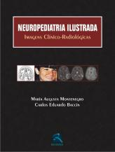 Neuropediatria Ilustrada