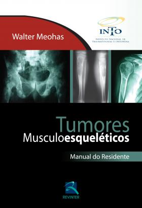 Tumores Musculoesqueléticos - Manual Do Residente